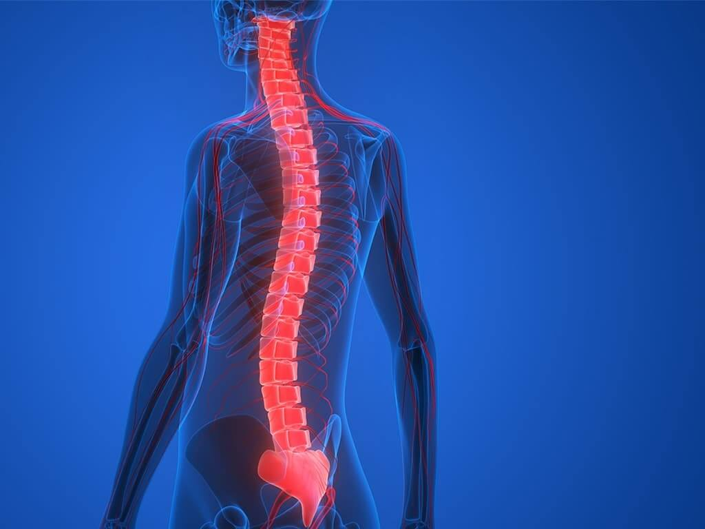 Spine-related problems